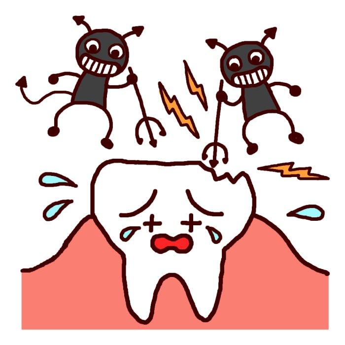 妊娠中の予定外出費:虫歯治療!!