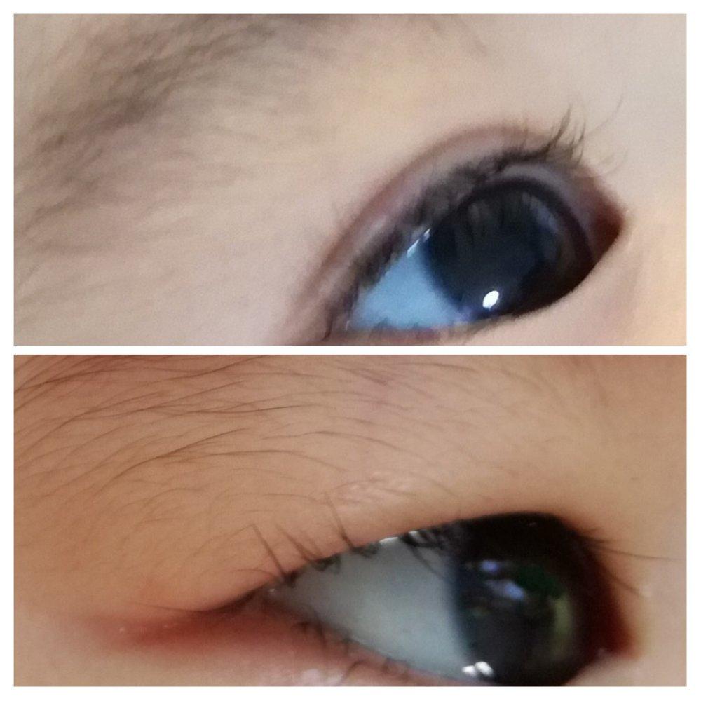 上:通常時の目、下:むくみ時の目